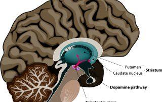 NUCCA and Parkinson's disease