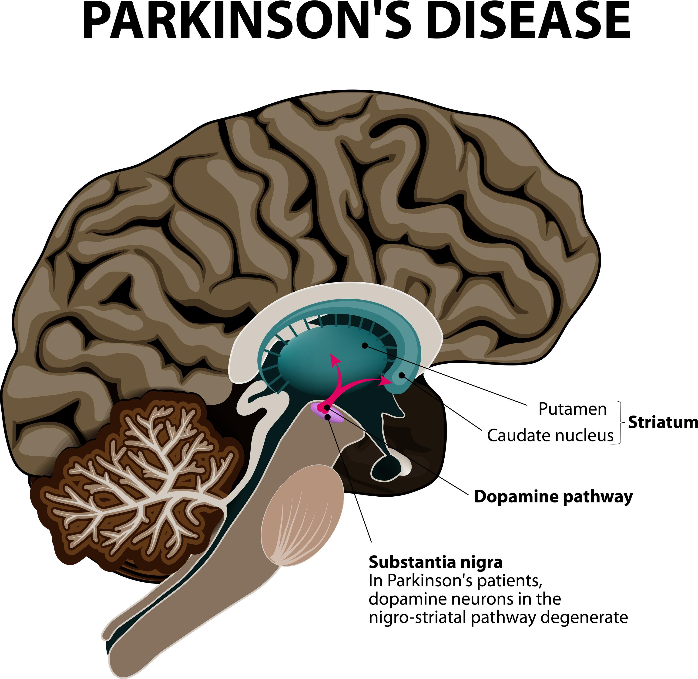 Parkinson\'s Disease - NUCCA - National Upper Cervical Chiropractic ...