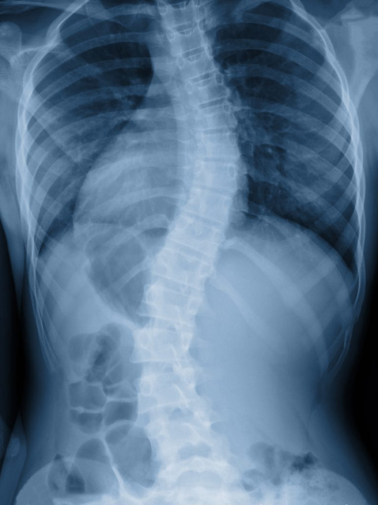 NUCCA and scoliosis