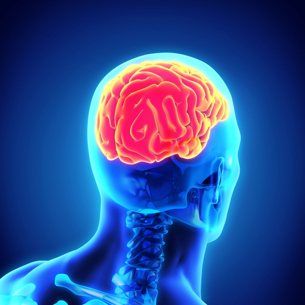 Postconcussion syndrome