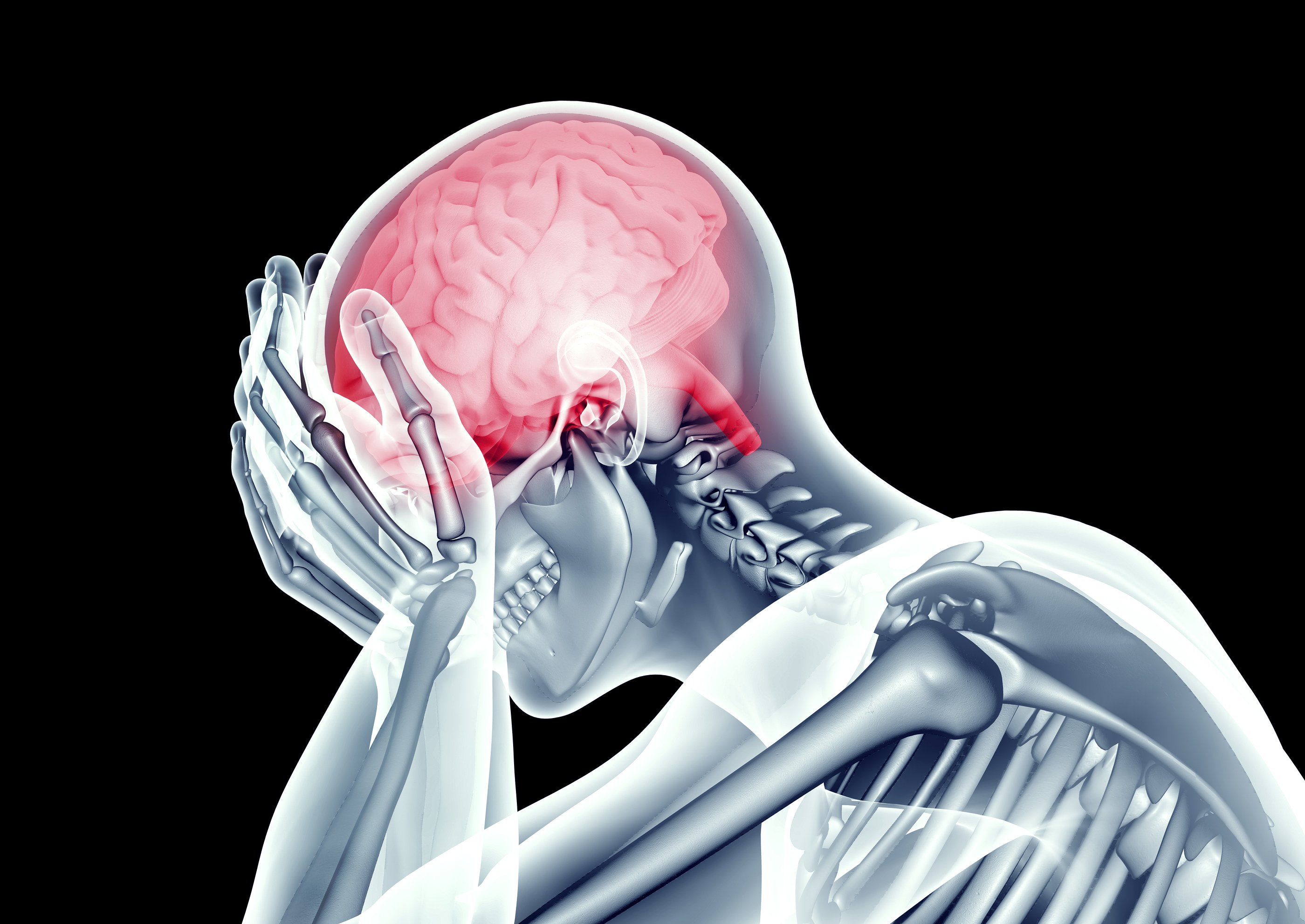 NUCCA and Headaches