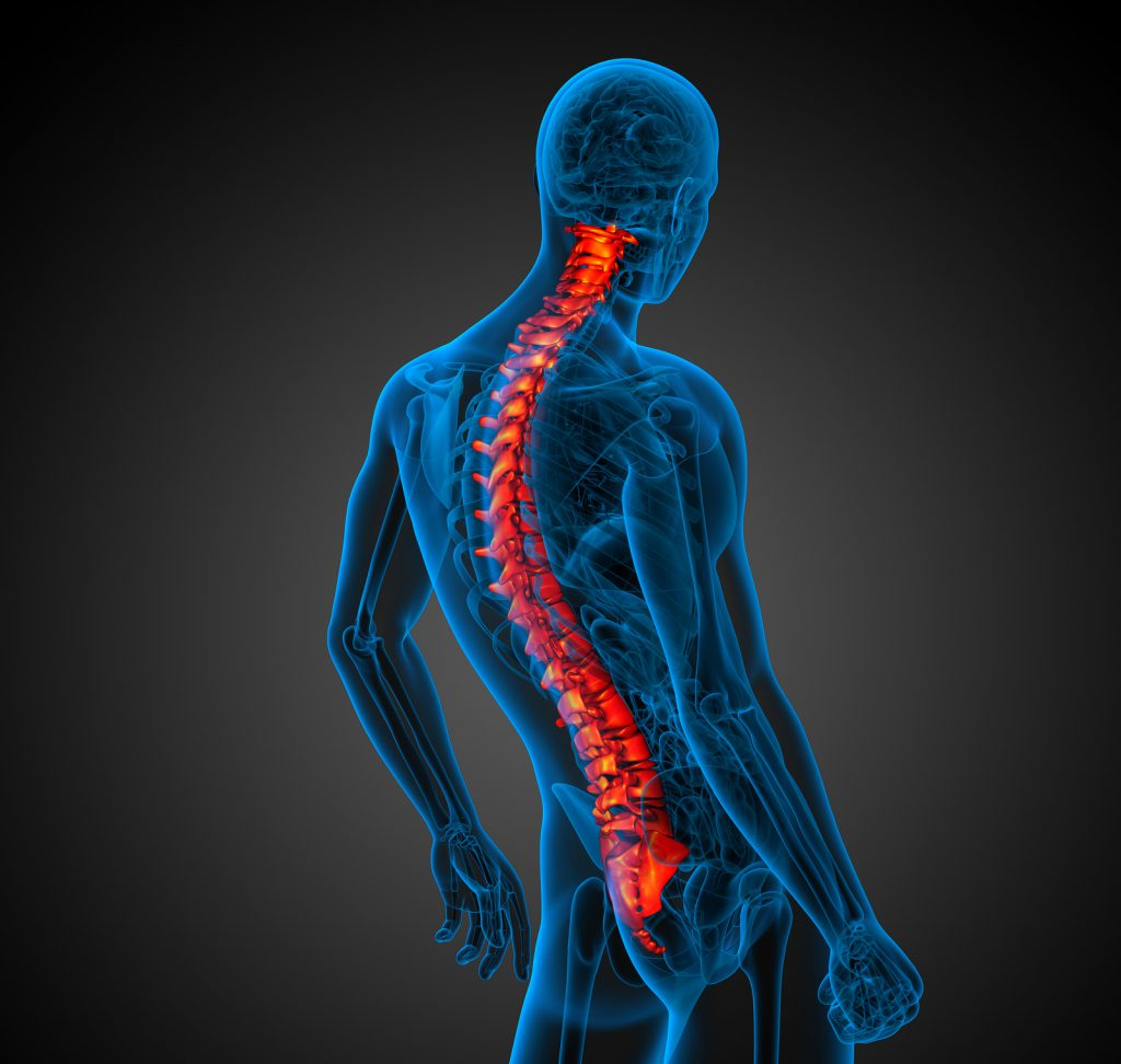 scoliosis chiropractor