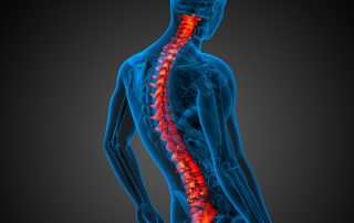 NUCCA and back pain