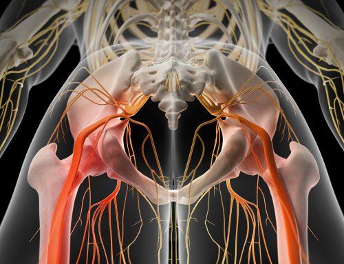 Upper Cervical Care Provides Benefits for Sciatica Patients