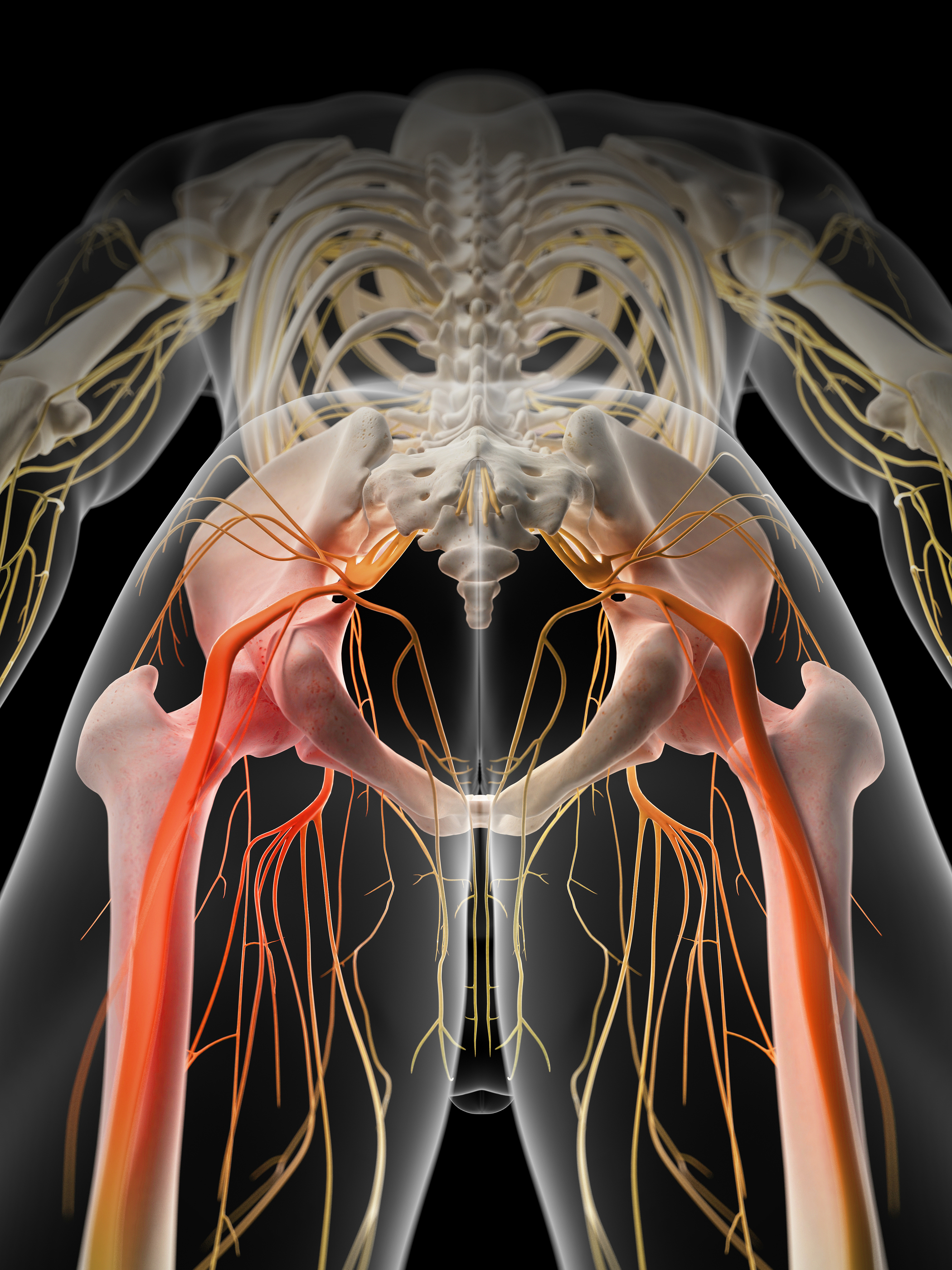 Medically Accurate Illustration Painful Sciatic Nerve Nucca