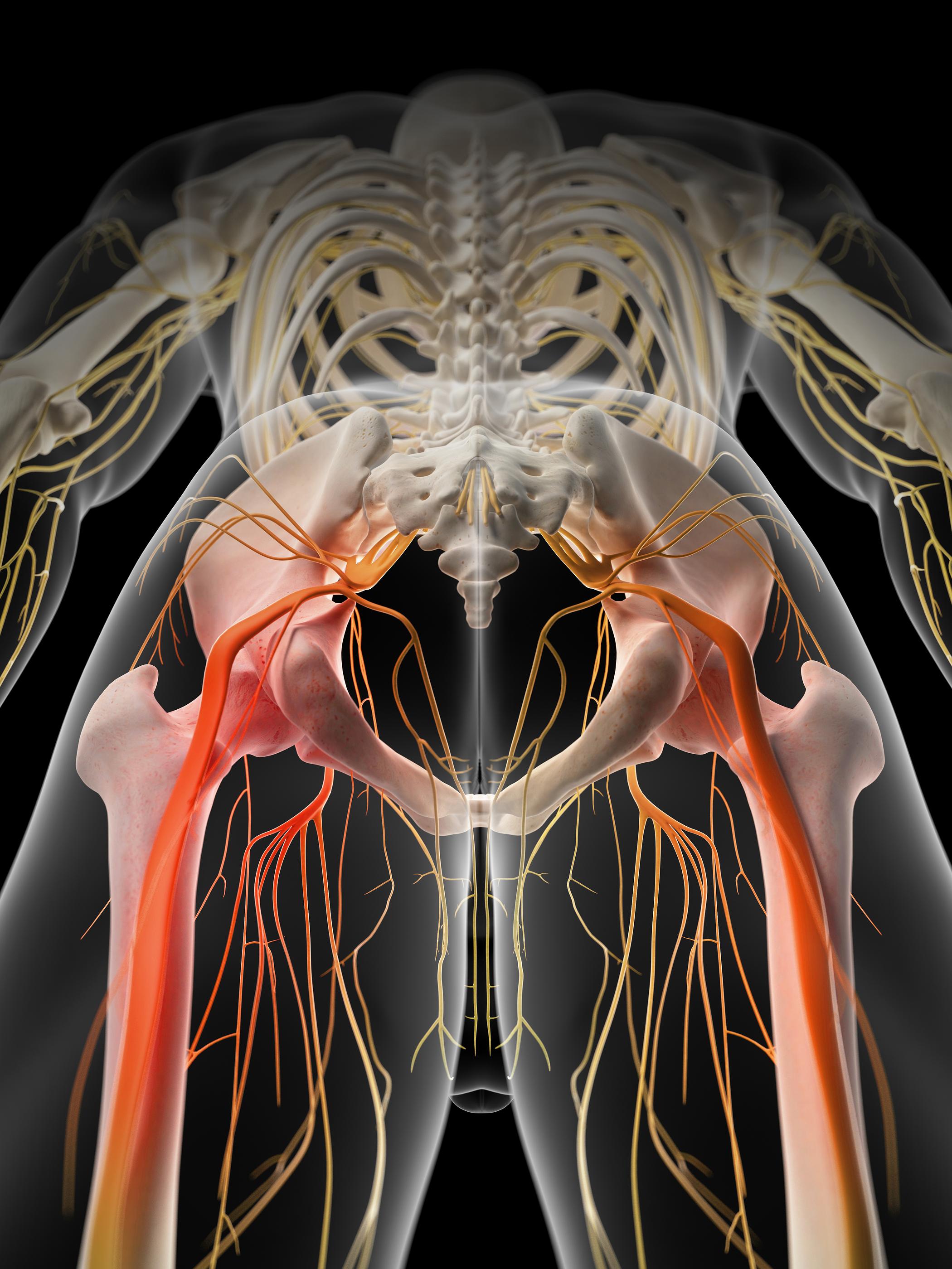 NUCCA and sciatica