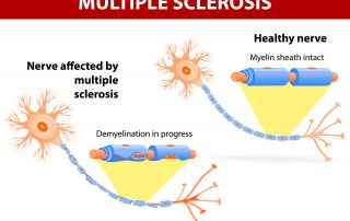 NUCCA and multiple sclerosis