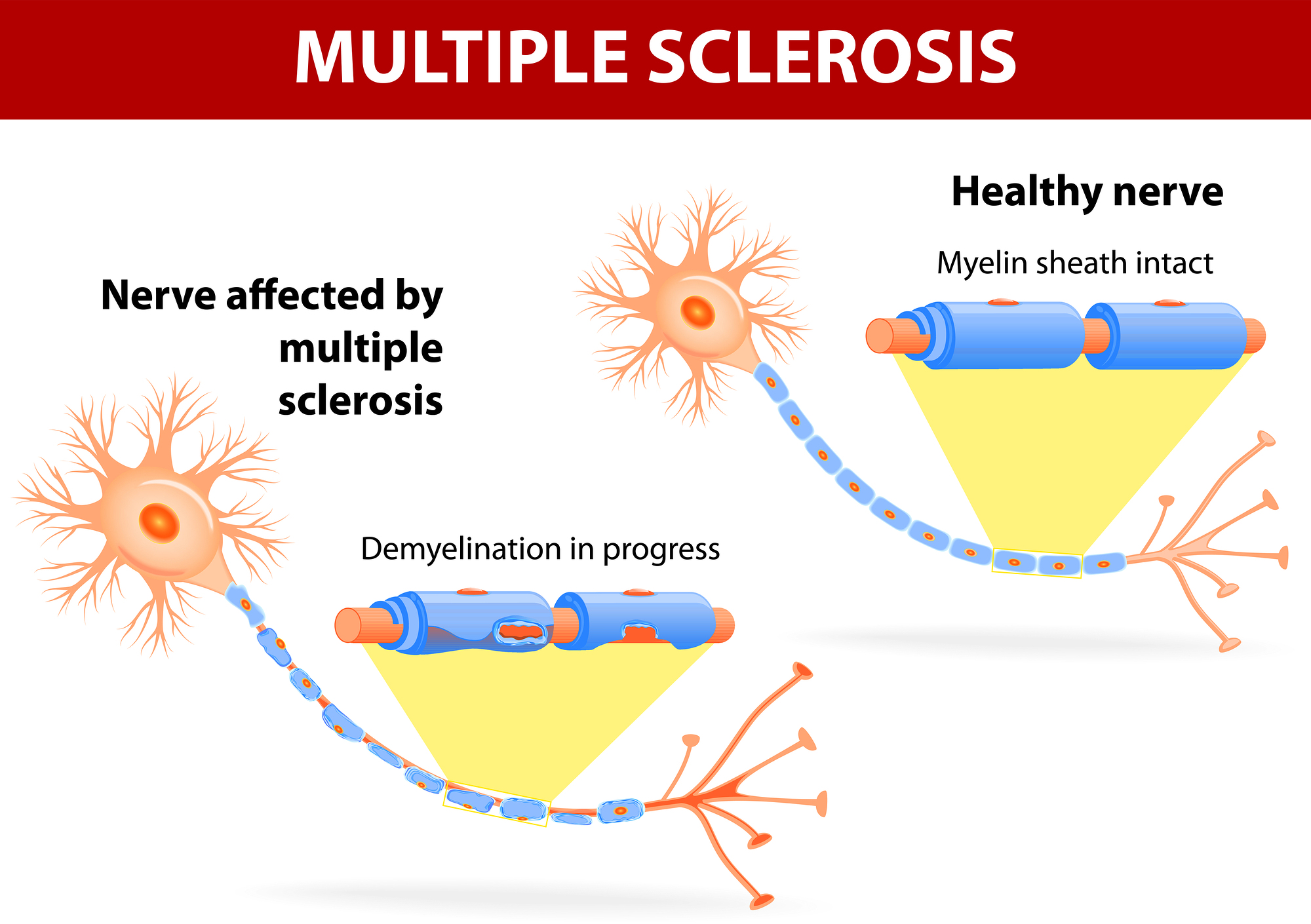 Diagnosis and Management of Multiple Sclerosis: Case ...