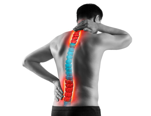 Signs That You Have Scoliosis