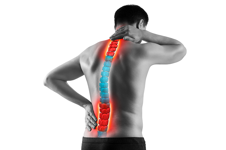 Scoliosis, scoliosis chiropractor