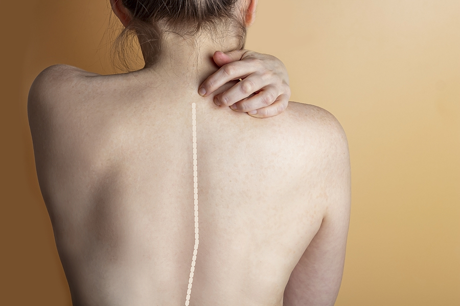 Woman With Scoliosis Of The Spine. Curved Woman's Back.