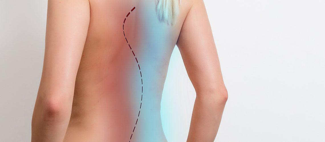 Scoliosis Chiropractic Adjustment